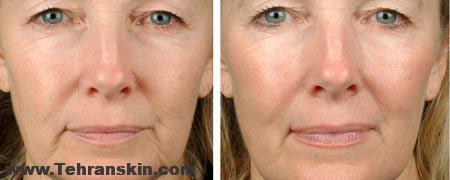 RFF2 - لیزر RF فرکشنال آخرین فناوری در زیبایی و جوان سازی پوست!
