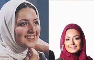 شیلا خداداد قبل و بعد از عمل بینی2