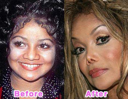 عمل جراحی بینی بازیگران قبل و بعد