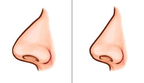 عوارض و خطرات جراحی بینی
