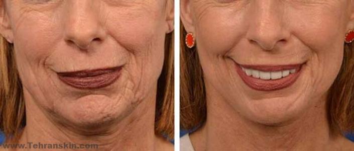 %D9%BE%D9%88%D8%B3%D8%AA %DA%AF%D8%B1%D8%AF%D9%86 - جدیدترین روش جوانسازی پوست | فیس آپ | بهترین روش تایتنینگ پوست