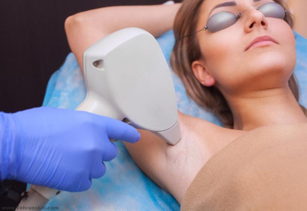 woman having laser hair removal on her armpit 1 1024x704 - تیرگی پوست بعد از لیزر موهای زائد : علت و درمان این مشکل را بیشتر بشناسید