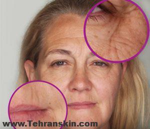 bear skin types 1 300x258 - رفع چین و چروک صورت با بوتاکس | هزینه بوتاکس صورت