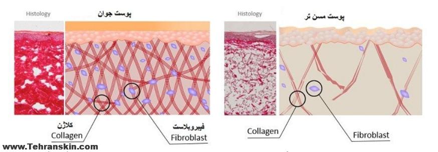 fibroblasts in mesotherapt Jalupro - تزریق حرفه ای مزوژل جالپرو و انواع مزوتراپی در مرکز شریعتی