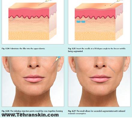 how to inject dermal fillers 1 - بهترین مارک ژل برای تزریق خط خنده کدومه؟
