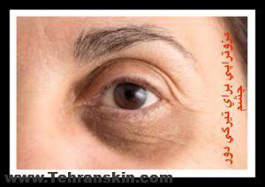 3 300x212 - مزوتراپی دور چشم | فیلم مزوتراپی دور چشم