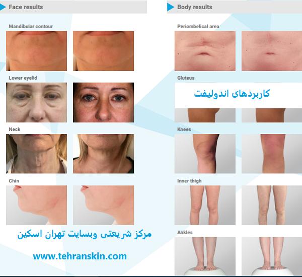 endolift uses for face and body - از صفر تا صد اندولیفت صورت: بهترین متخصص اندولیفت تهران+فیلم، عکس